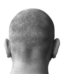 Bald Head From Back