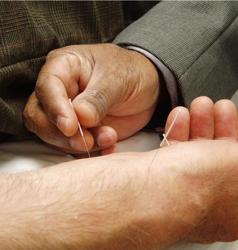 Acupunture Treatment - Wikipedia