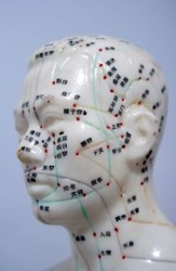 Acupunture Model Showing Needle Positions