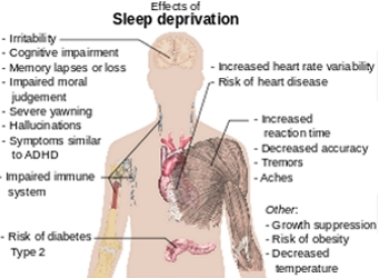Effects Of Sleep Deprivation - Wikipedia