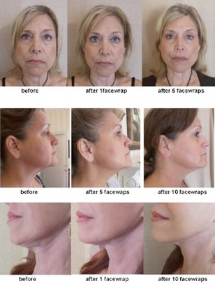 Before & After Results ©2007 - 2011 The Face Wrap. All Rights Reserved.